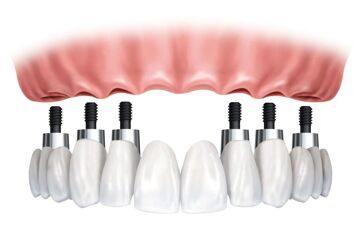 implant-bridge-and-crowns-f61581c7-4101-4d8c-8ff4-aa86d6b845c1(1)